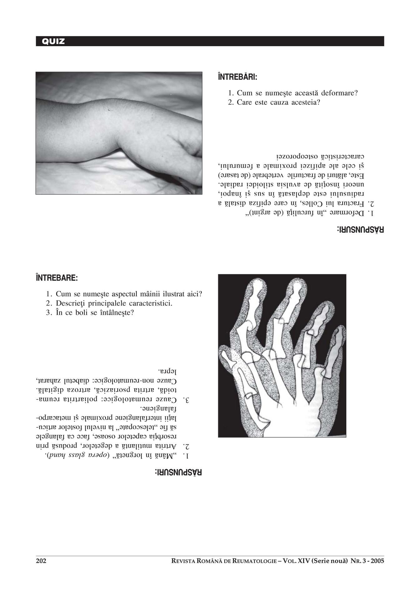 dureri de artrită de la vârf